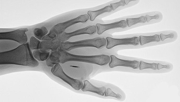 Implantarea angajatilor din UK cu microcipuri – Subiect de controversa