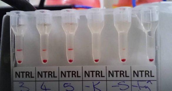 Un nou test revolutionar iti spune daca esti infectat cu coronavirus in 20 de minute
